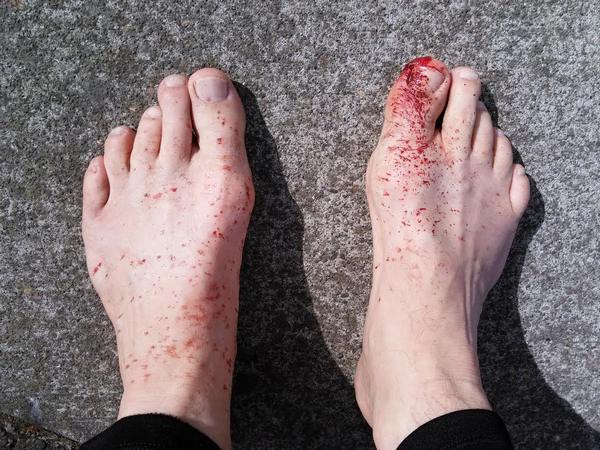 bloody feet.jpg
