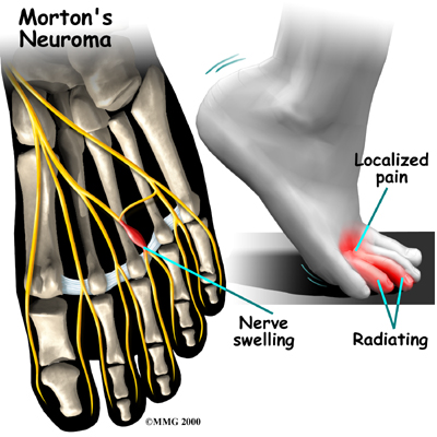 http://thebarefootrunners.org/sites/default/files/neuroma.jpg